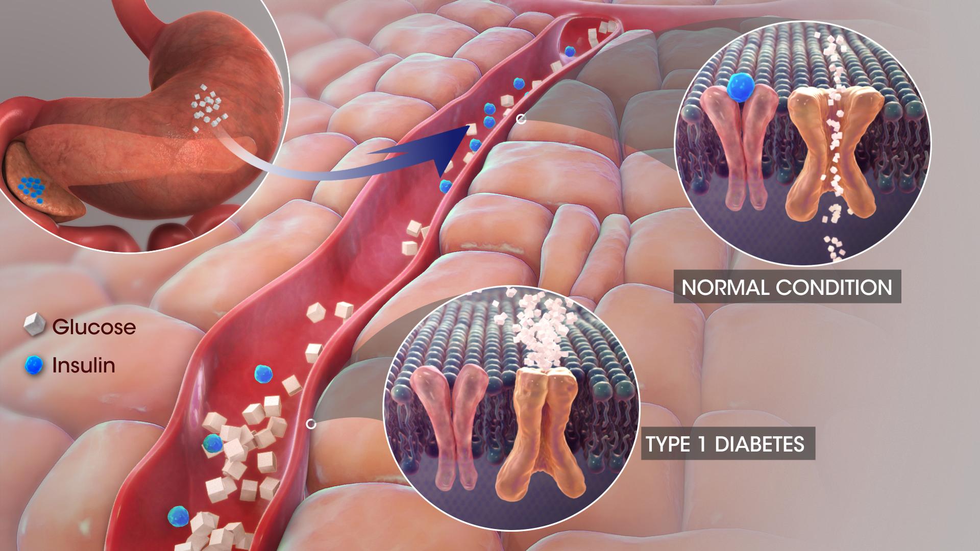 Diabetes: 3D Illustration