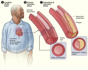 Heart Disease: Atherosclerosis