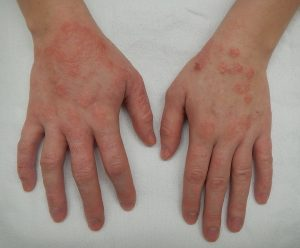 Skin conditions: Dermatitis